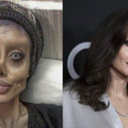Η 19χρονη εξομολογείται πως είπε ψέματα για τις πλαστικές επεμβάσεις ώστε να μοιάσει στην Angelina Jolie