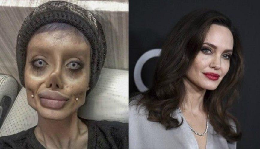 """Στο νοσοκομείο και σε κρίσιμη κατάσταση η Ιρανή """"Angelina Jolie"""""""