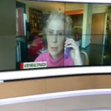 Η γιατρός της Ιωάννας Παλιοσπύρου εξηγεί τι είναι η μάσκα που φοράει μετά την επίθεση με βιτριόλι και σε τι βοηθάει